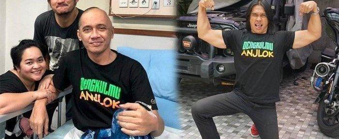 Agung Hercules Kanker Otak / foto:@isa_bajaj